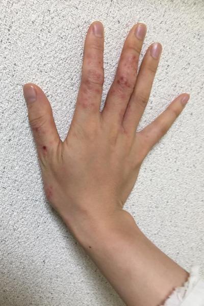 アトピーの手
