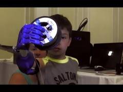 3Dプリンター義手