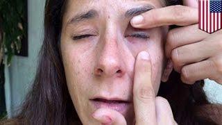 目薬ネイル瞬間接着剤