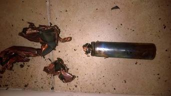 口の中で電子たばこの韓国LG製バッテリーが爆発 歯を7本失う大けがをした米国人男性