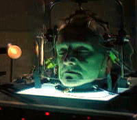 痛いニュース(ノ∀`) : 頭を切り離して別人の体に移植する頭移植手術プロジェクト「HEAVEN/GEMINI」が始動! - ライブドアブログ