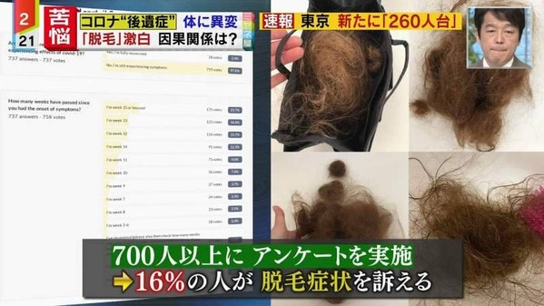 新型コロナの後遺症で16%の人がハゲる事が判明 髪の毛の4~5割が抜け落ちる