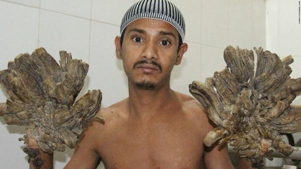 001-tree-man-bangladesh