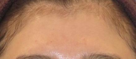 額のヒアルロン酸施術前