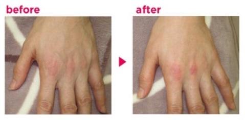 手背の注入治療
