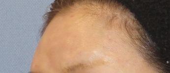 額のヒアルロン酸施術後