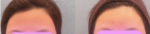 額のヒアルロン酸施術前→施術後