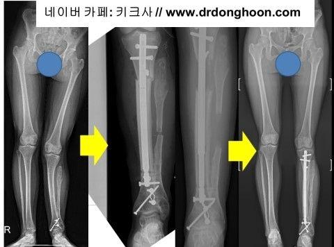 プリサイス,李東訓教授,DR_DONGHOON,キクサ,身長手術-5