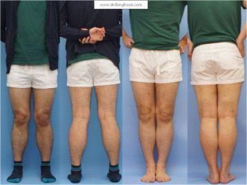 X脚の矯正手術,李東訓(イドンフン)教授,身長を伸ばす手術