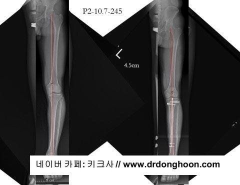 プリサイス,李東訓教授,DR_DONGHOON,キクサ,身長手術-3