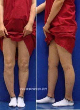Hexapod system,複合変形,キクサ,李東訓教授,身長を伸ばす手術-13