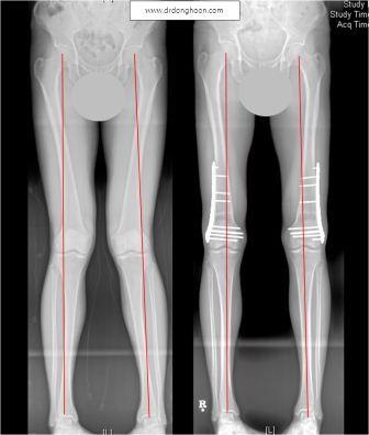 X脚の矯正手術の前後,李東訓(イドンフン)教授,身長を伸ばす手術-3