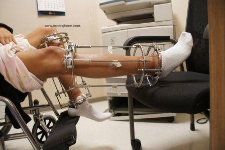 つま先立ち,関節拘縮,速成延長(LON),李東訓教授,身長を伸ばす手術2