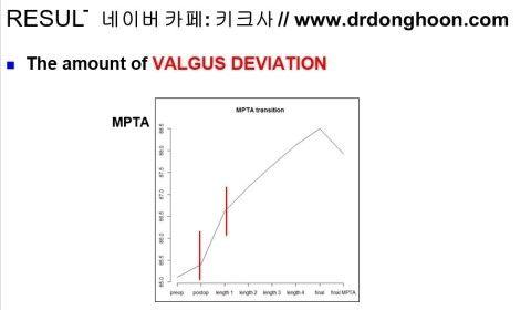 プリサイス,李東訓教授,DR_DONGHOON,キクサ,身長手術-4