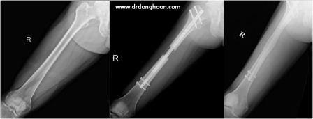 身長を伸ばす手術,骨延長,プリサイス-1