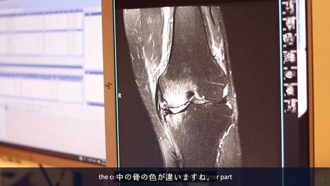 関節炎О脚2
