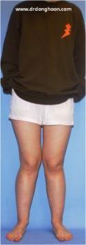 遺伝性多発性外骨症,X脚矯正,李東訓教授,脚変形-3