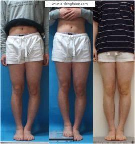 脚長差の矯正,李東訓(イドンフン)教授,身長を伸ばす手術-1