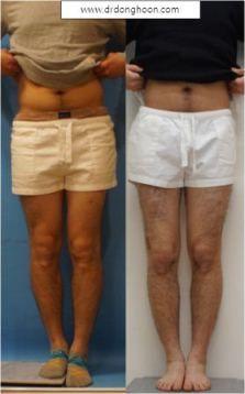 脚長差の矯正,ふくらはぎ延長,李東訓教授,身長を伸ばす手術-2