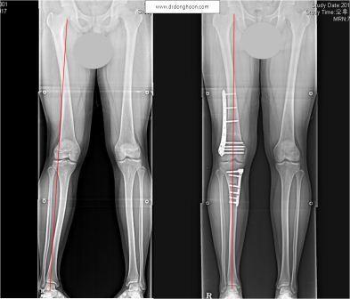 X脚の矯正手術の前後,李東訓(イドンフン)教授,身長を伸ばす手術-6