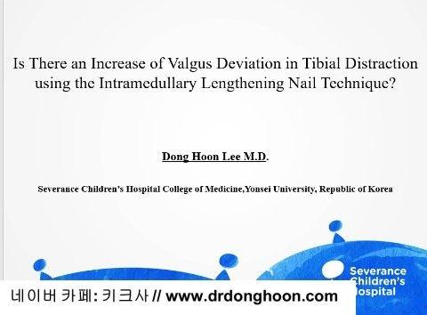 プリサイス,李東訓教授,DR_DONGHOON,キクサ,身長手術-1