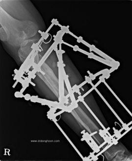 Hexapod system,複合変形,キクサ,李東訓教授,身長を伸ばす手術-12