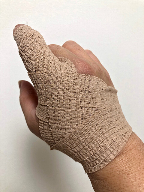 Injured Righ Hand