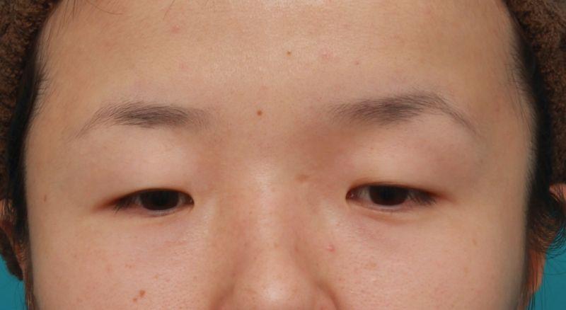 昨日アップした、眼球自体が小さい目に対して、目頭切開+眼瞼下垂手術をした症例写真の解説です。