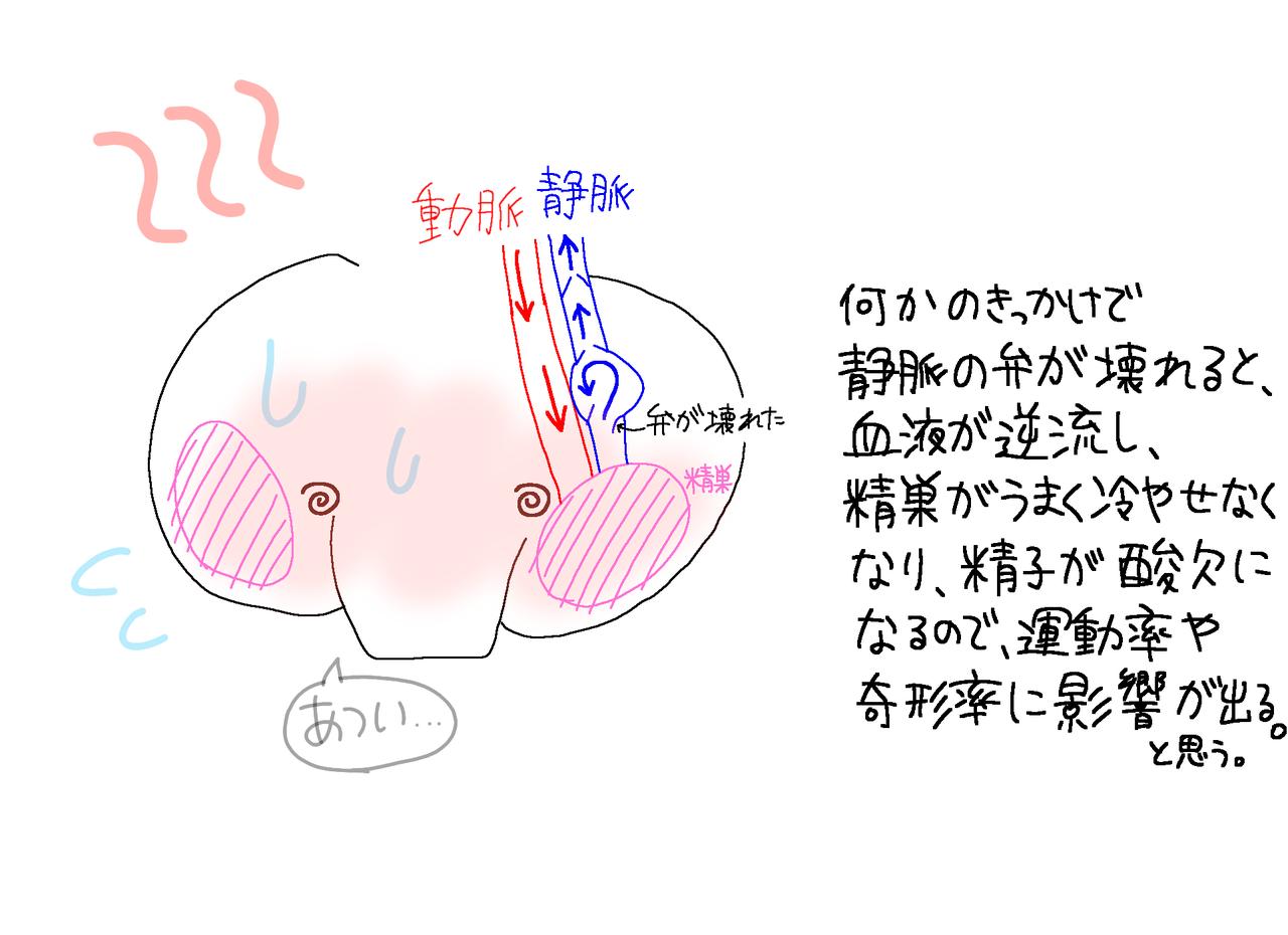 索 静脈 手術 精 瘤