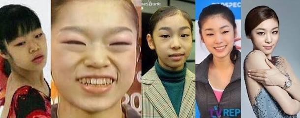 【フィギュアスケート】韓国人「キム・ヨナに嫉妬した日本人が画像を捏造!」日本人によって捏造されたキム・ヨナの顔の成長過程をご覧下さい