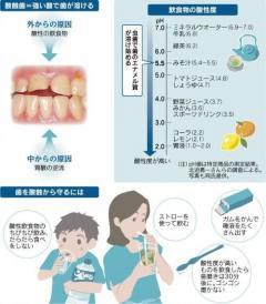 むし歯じゃないのに痛い、冷たいものがしみる「酸蝕歯」