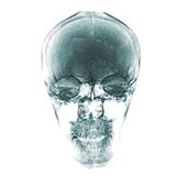 ガラスの頭蓋骨