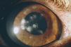 シェルティーの角膜疾患