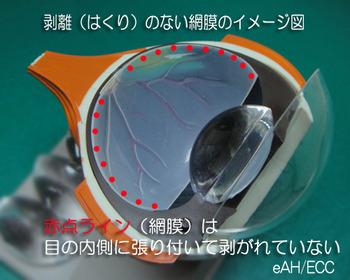 剥離(はくり)のない網膜のイメージ図