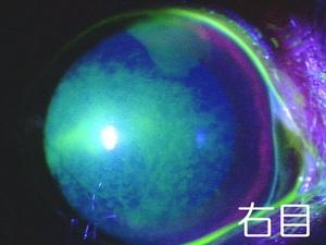 右目 シャンプー後の角膜障害