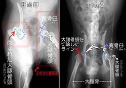 股関節脱臼と骨頭切除術