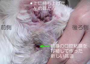 自己移植手術 新しい耳道 難治性外耳炎