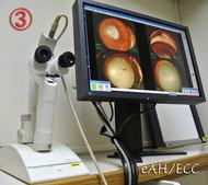 眼科診療用として使用