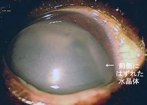 緑内障眼(水晶体前方脱臼)