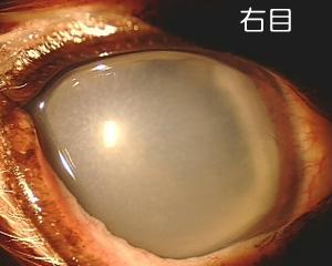 右目 白くなった水晶体が前側にはずれ(水晶体脱臼)、白いエリアが広く見えます