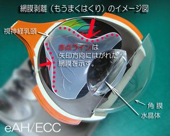 網膜剥離(もうまくはくり)のイメージ図