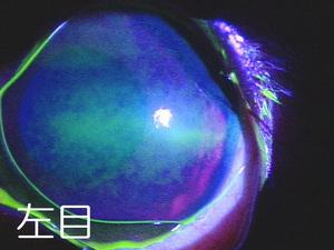 左目 シャンプー後の角膜障害