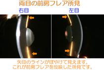 両目の前房フレア(房水中の蛋白濃度の上昇によるチンダル現象)が見られます。