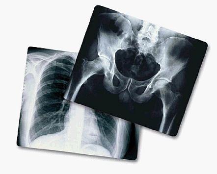 X-ray_1