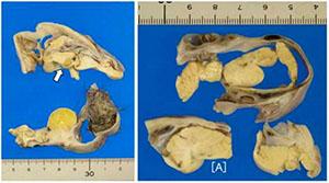 【驚愕】少女の卵巣から小さな脳と頭蓋骨の一部、髪の毛が発見される