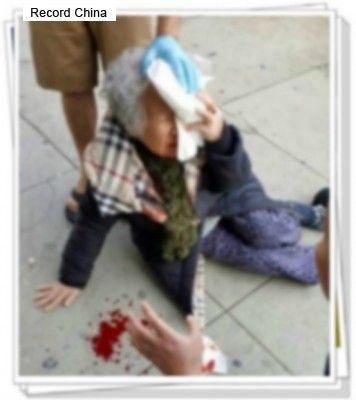 【ワロw】ロサンゼルスで白人女性が韓国人女性の顔面を拳で殴り、集まった群衆に『ホワイトパワーーーーーーーーーーーーーーー!』と叫ぶ