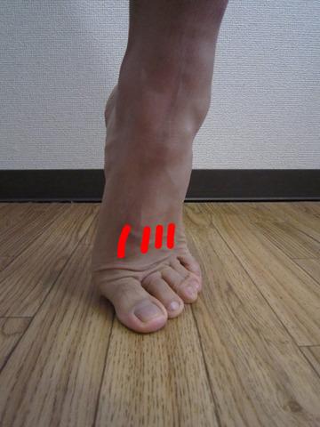 足の甲が痛い~疲労骨折「中足骨」