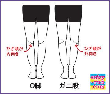 O脚とガニ股