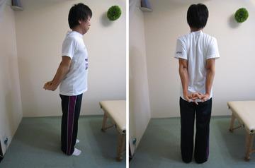 肩甲骨-A3