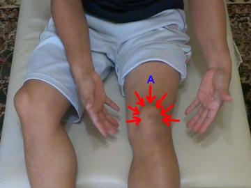 膝を押す方向-1